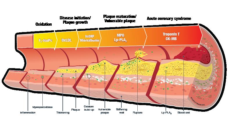 MD Heartpro - Artery Wall