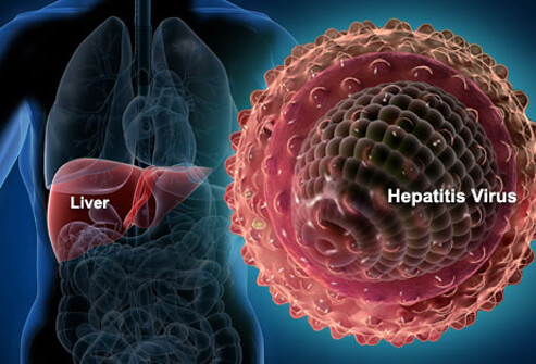 hepatitis-s1-liver-hepatitis-virus