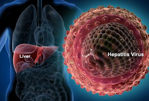hepatitis-s1-liver-hepatitis-virus