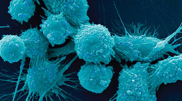 Cancer-Cells-12