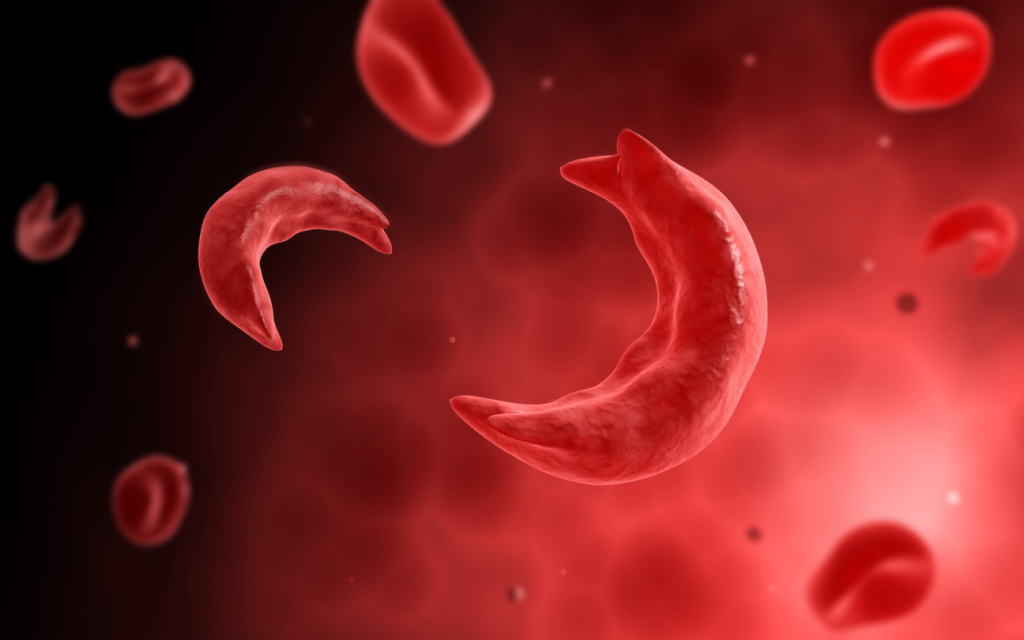 Microscopic view of sicke cells causing anemia disease.