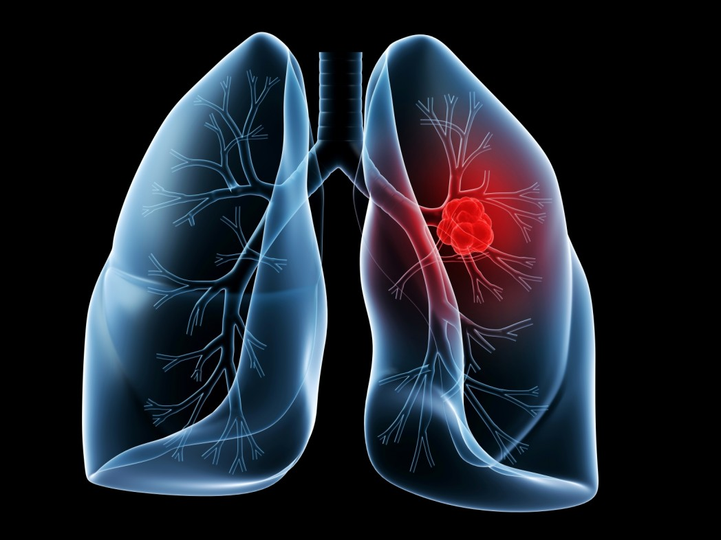 1376346690_lung-cancer